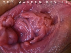 TMD: Explosive FARTS & PROLAPSED Pussy Fisting!!